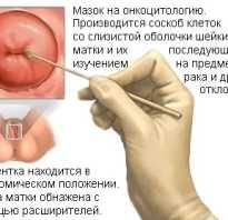 Анализ мазка на раковые клетки в гинекологии
