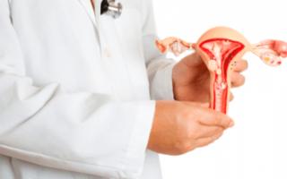 Как определитьрак шейки матки посимптомам